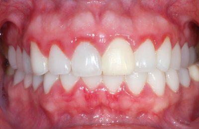 Significance of gum disease treatment